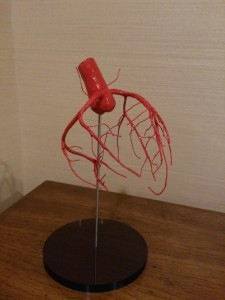 冠動脈の模型